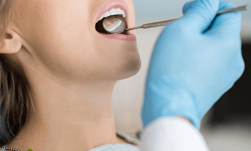 descubre-los-beneficios-de-una-limpieza-dental-–dental-alvarez