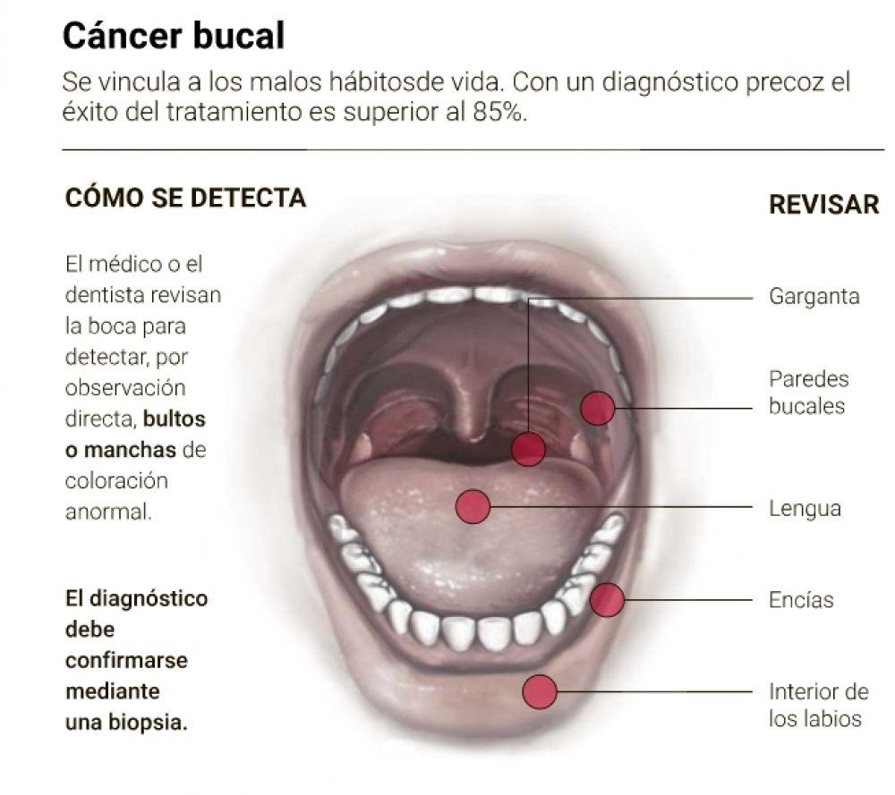 que es cancer boca este posibil să obțineți condilom în baie