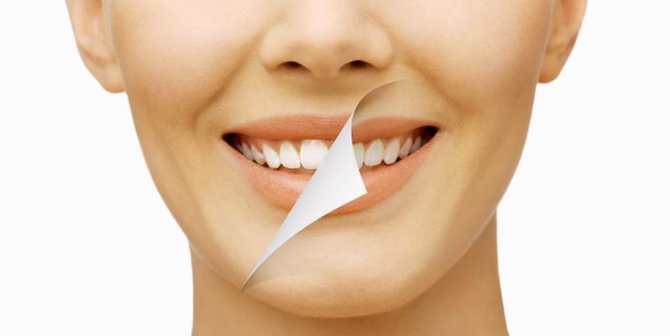 Fluorosis dental Tijuana