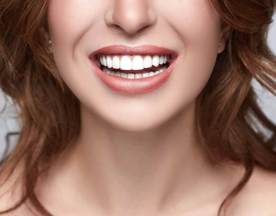 Dental Alvarez - 7 Makeovers dentales de celebridades