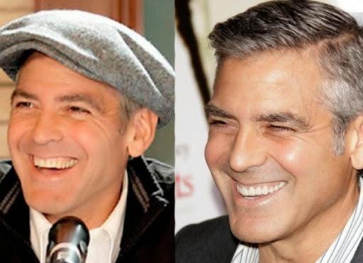 George Clooney - Makeovers dentales de celebridades