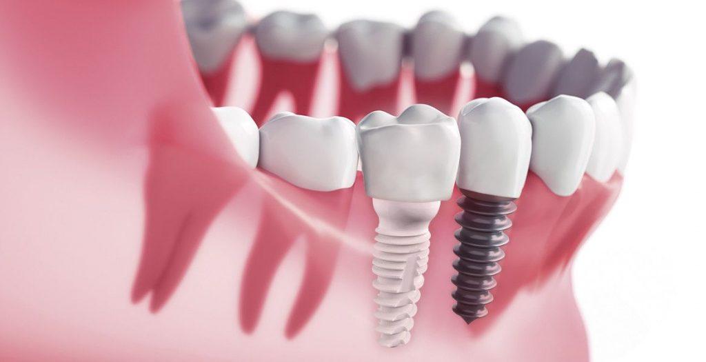 Implantes de Zirconio - Dental Alvarez
