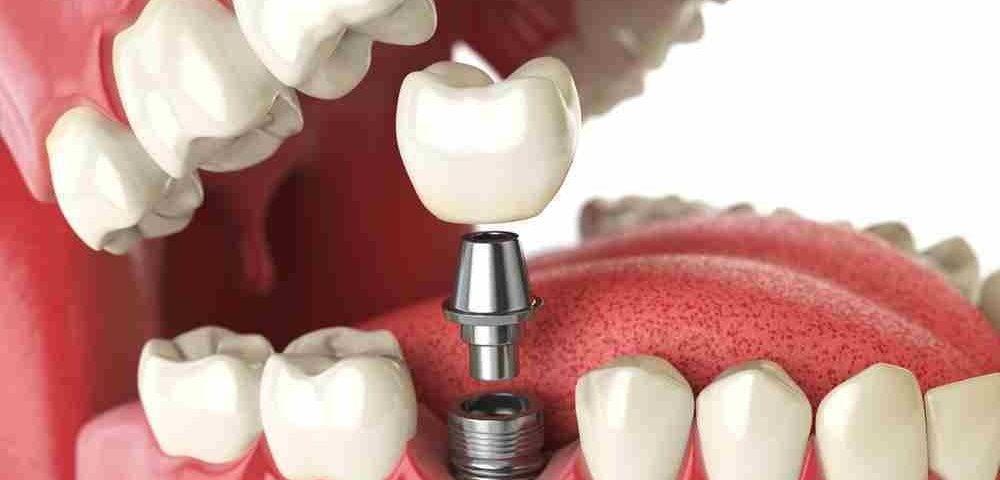 Implantes Dentales - Dental Alvarez