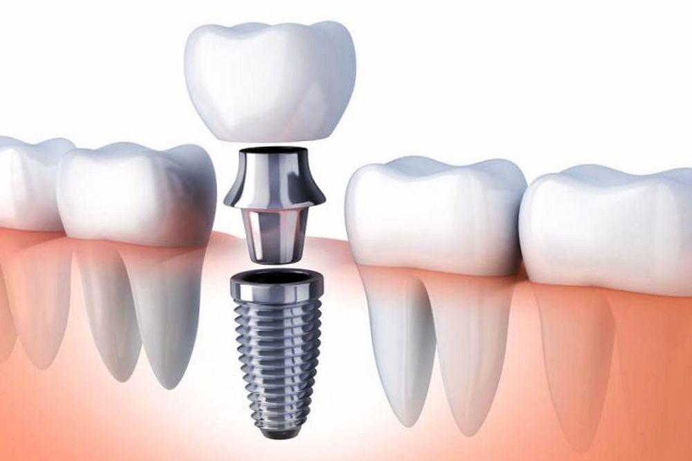 Implantes Dentales | Dental Alvarez