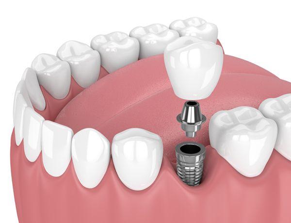 Implantes dentales de titanio - Dental Alvarez