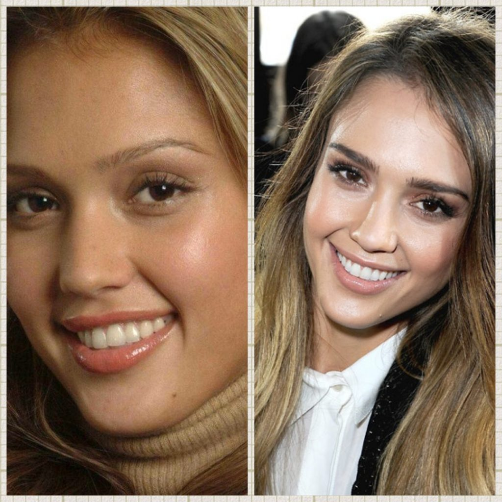 Jessica Alba - Makeovers dentales de celebridades