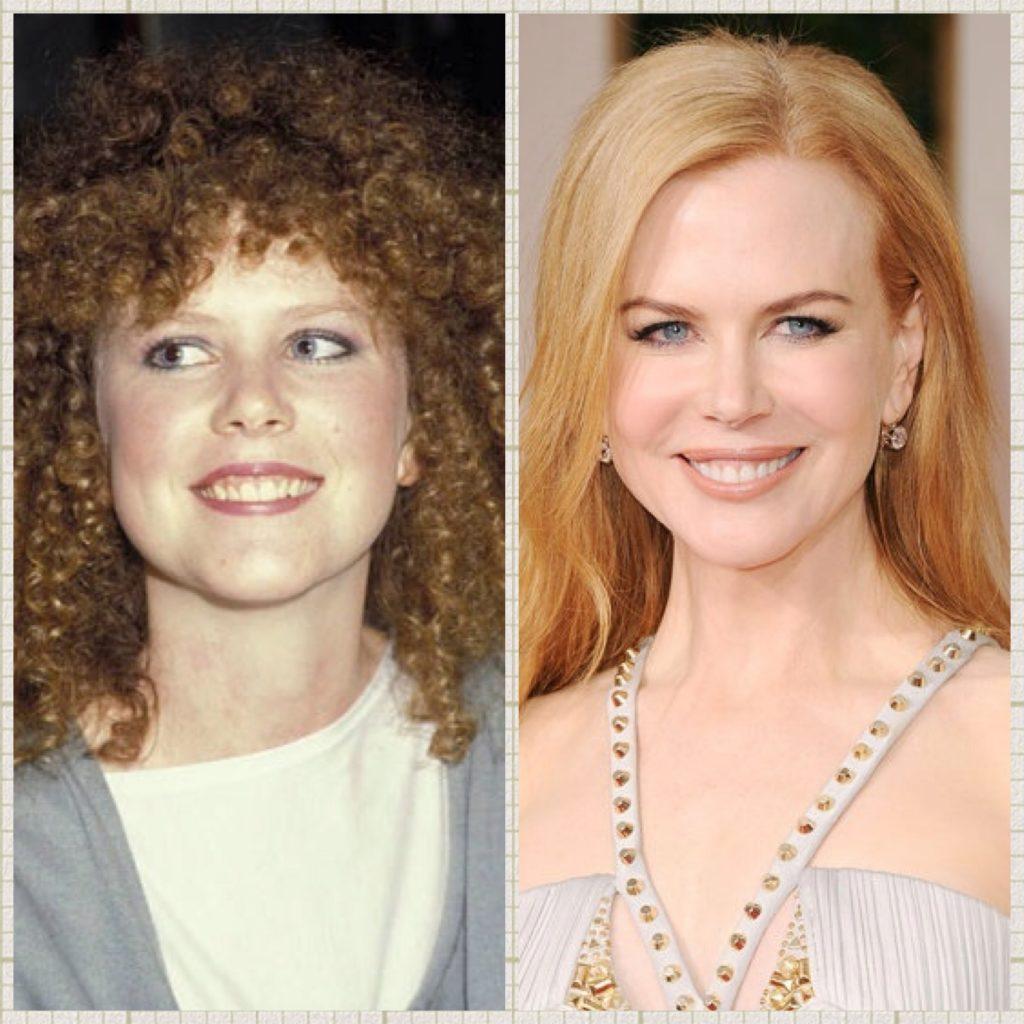 Nicole Kidman - Makeovers dentales de celebridades