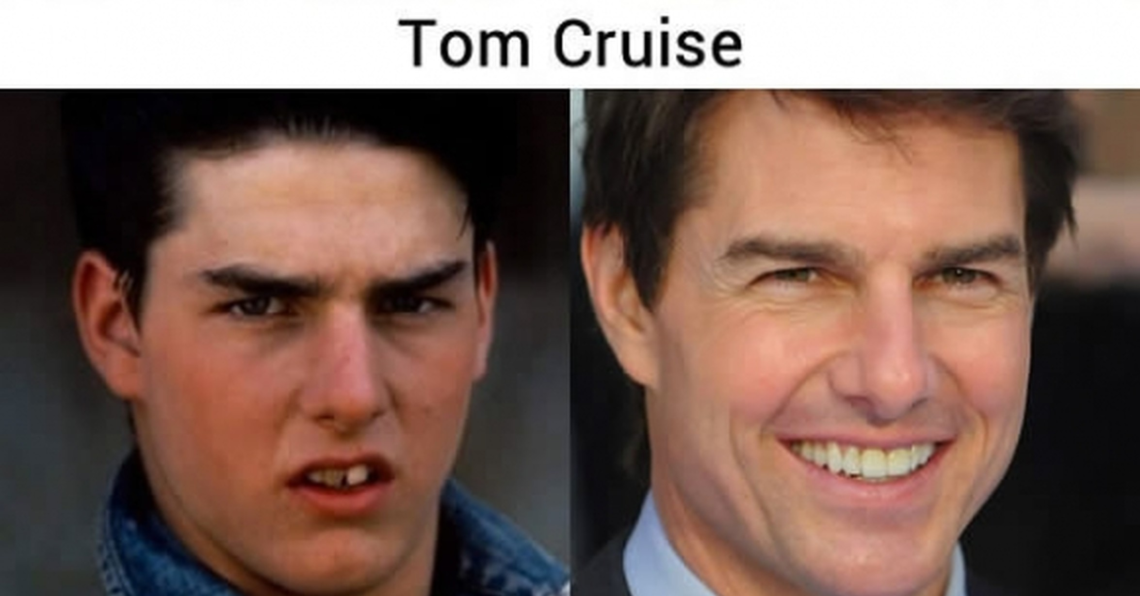 Tom Cruise - Makeovers dentales de celebridades