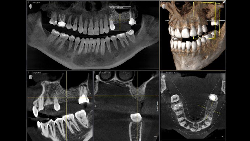 Tecnología 3D - Dental Alvarez