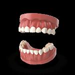 dentistas-tijuana-periodoncia-dentadura