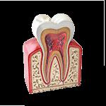 dentistas-tijuana-periodoncia-prevencion