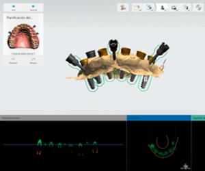 tomografias-dentales-dental-alvarez