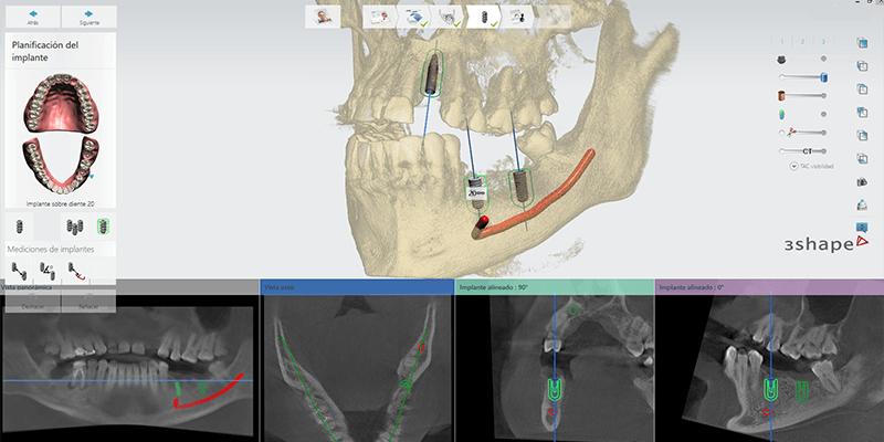 laboratorio-radiologico-dental-dentistas-en-tijuana