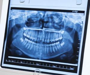 laboratorios-de-radiografias-dentales-dentistas-en-tijuana
