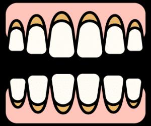 desgaste-en-cuello-de-dientes