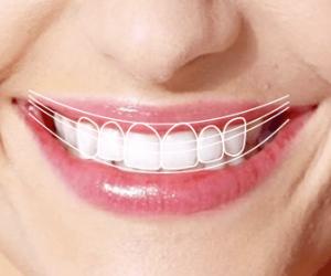 diseño-de-sonrisa-digital-ventajas