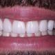 cuanto-cuestan-las-carillas-de-porcelana-cosmetica-dental