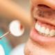 solucion-dental-endodoncia-en-dientes-anteriores-en-tijuana