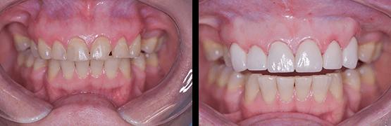 abrasion-dental-antes-y-despues-coronas-dentales-en-tijuana
