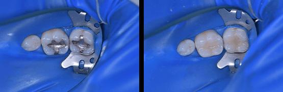 cambio-de-amalgama-por-filtraciones-procedimiento-antes-y-despues