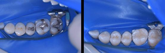 cambio-de-amalgama-por-resina-opcion-estetica-y-biocompatible-antes-y-despues