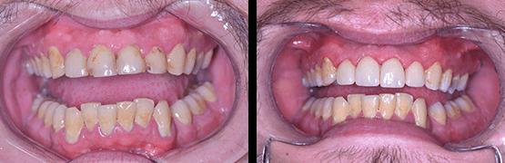 cambio-de-coronas-dentales-en-tijuana-antes-y-despues
