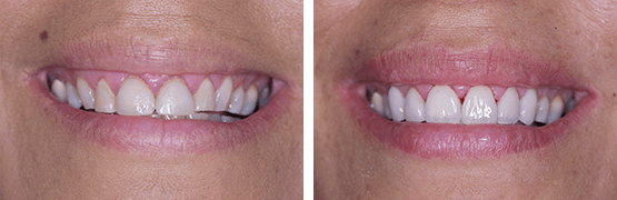 carillas-diseno-de-sonrisa-coronas-dentales-en-tijuana-antes-y-despues