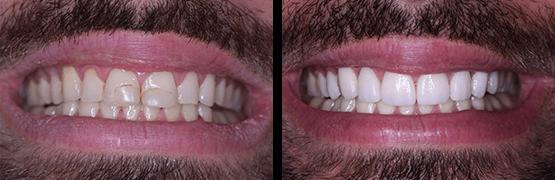 carillas-y-coronas-dentales-en-tijuana-smile-makeover