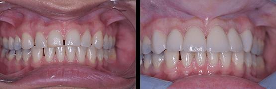 coronas-dentales-en-tijuana-antes-y-despues