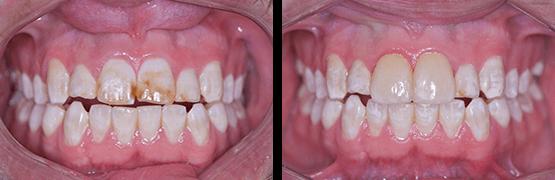 coronas-dentales-en-tijuana-fluorosis-antes-despues