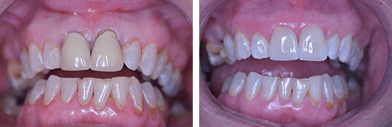 coronas-dentales-en-tijuana-libres-de-metal-antes-despues