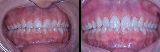 coronas-dentales-en-tijuana-procedimiento-dental-antes-y-despues