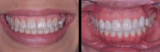 coronas-dentales-libres-de-metal-en-tijuana-antes-y-despues