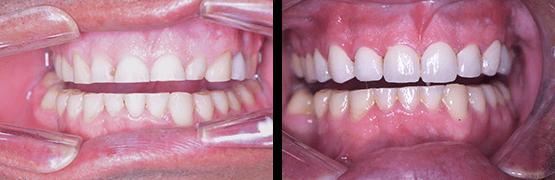 desgaste-dental-severo-antes-y-despues-coronas-dentales-en-tijuana