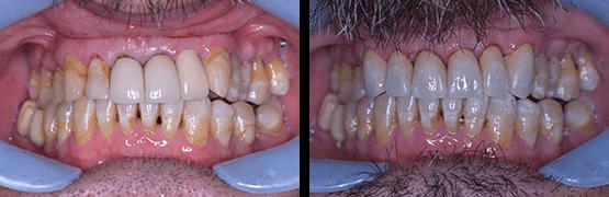 fluorosis-antes-y-despues-coronas-dentales-en-tijuana