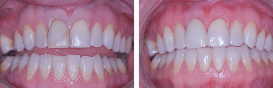 fractura-dental-coronas-dentales-en-tijuana-antes-despues
