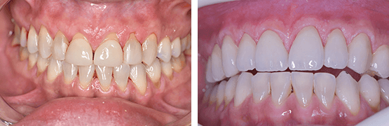 procedimiento-carillas-coronas-dentales-en-tijuana-antes-y-despues