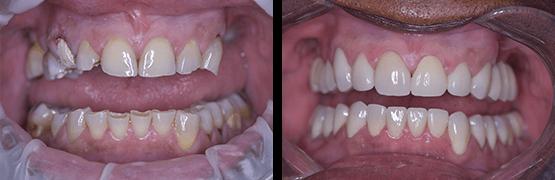 rehabilitacion-completa-de-sonrisa-antes-y-despues-tijuana