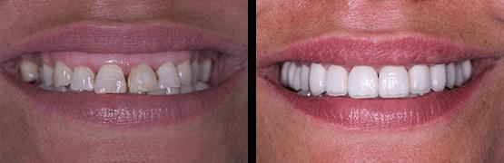rehabilitacion-completa-diseno-de-sonrisa-coronas-dentales-en-tijuana