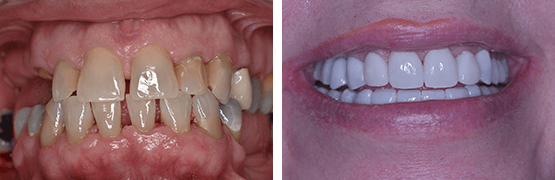 rehabilitacion-dental-completa-carillas-coronas-dentales-tijuana