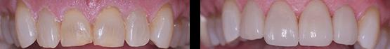 resuelve-desgaste-y-fisuras-con-carillas-de-porcelana-coronas-dentales-en-tijuana