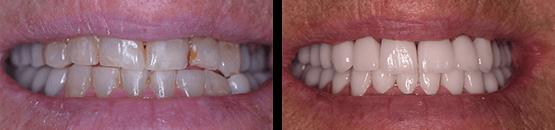 antes-y-despues-coronas-dentales-libres-de-metal-y-frenos-tijuana