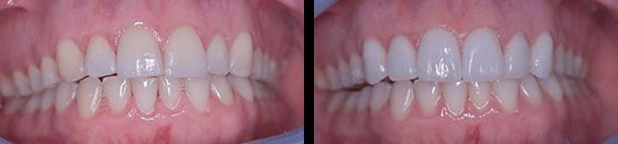 carillas-coronas-dentales-en-tijuana-antes-y-despues