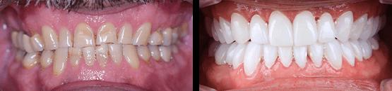 coronas-dentales-libres-de-metal-tijuana-antes-y-despues