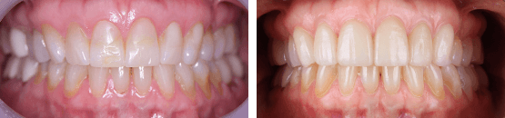 antes-y-despues-carillas-dentales-de-porcelana-para-dientes-con-desgaste-tijuana