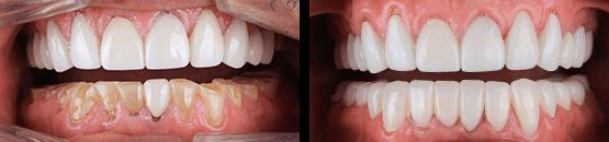 antes-y-despues-coronas-dentales-de-zirconia-tijuana