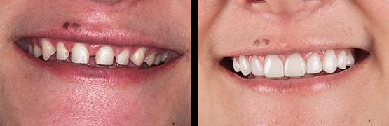 antes-y-despues-diseno-de-sonrisa-coronas-carillas-dentales-tijuana