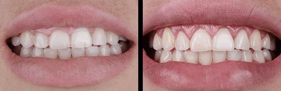 antes-y-despues-gingivectomia-alargamiento-de-coronas-dentales-tijuana