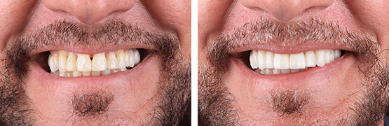 before-and-after-smile-design-metal-free-dental-crowns-tijuana