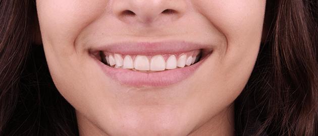 dental-alvarez-que-es-la-cosmetica-dental-en-tijuana